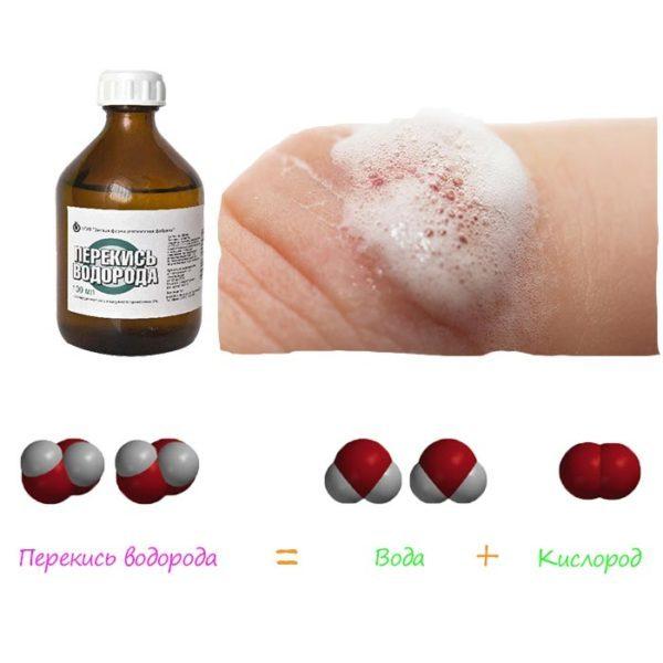 Сода і перекис водню: зцілювальний тандем від професора Неумивакіна